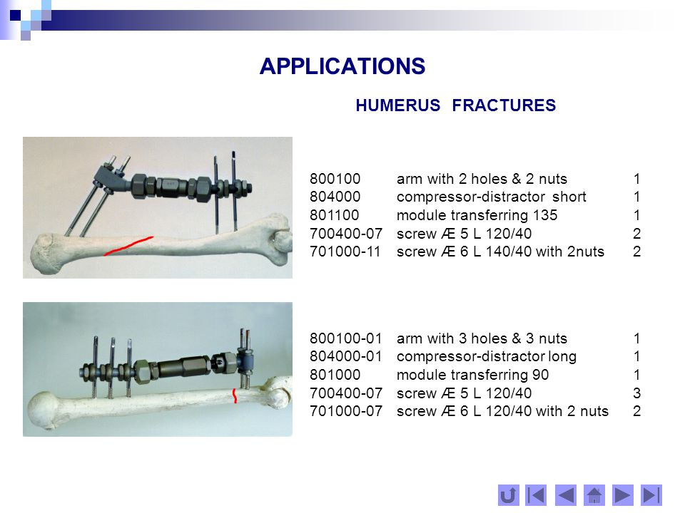 APPLICATIONS TIBIA FRACTURES 800200-01 arm with 3 holes & 3 nuts2 804000-02 compressor-distractor short 1 700500-07 screw Æ 6 L 120/406 800200 arm with 2 holes & 2 nuts 1 804000-03 compressor-distractor short 1 801000-01 module transferring 901 700500-11 screw Æ 6 L 140/40 4 701000-15 screw Æ 6 L 160/45 with 2 nuts2 800200 arm with 2 holes & 2 nuts 1 800200-03 arm with 5 holes & 5 nuts1 804000-02 compressor-distractor short 1 700500-11 screw Æ 6 L 140/40 7