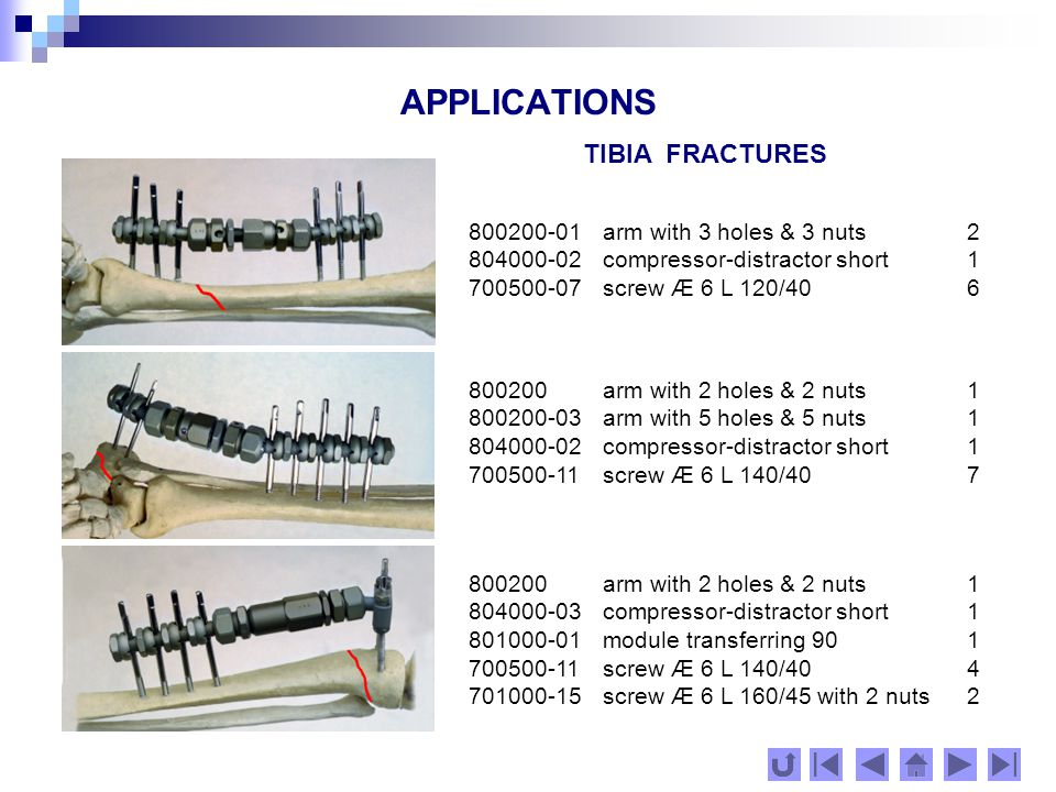 APPLICATIONS FEMUR FRACTURES 800200-01 arm with 3 holes & 3 nuts1 800200-03 arm with 5 holes & 5 nuts1 804000-02 compressor-distractor short 1 700500-14 screw Æ 6 L 160/458 800200-02 arm with 4 holes& 4 nuts 1 800200-03 arm with 5 holes & 5 nuts1 804000-03 compressor-distractor long 1 700500-14 screw Æ 6 L 160/45 9 800200-01 arm with 3 holes & 3 nuts1 800200-04 arm with 6 holes & 6 nuts1 804000-02 compressor-distractor short1 700500-14 screw Æ 6 L 160/45 9