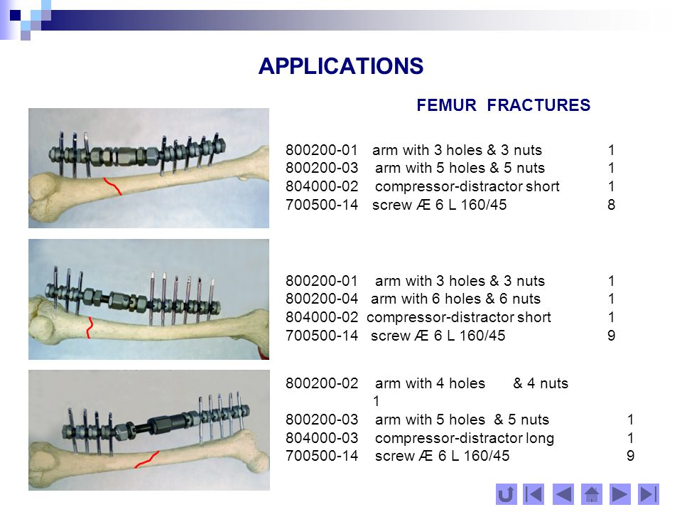APPLICATIONS FEMUR FRACTURES 00200-04 arm with 6 holes & 6 nuts1 800200-05 arm with 7 holes & 7 nuts1 804000-02 compressor-distractor short1 700500-14 screw Æ 6 L 160/4513 800200-02 arm with 4 holes & 4 nuts1 804000-03 compressor-distractor long 1 801100-02 module transferring1351 700500-11 screw Æ 6 L 140/40 4 701000-23 screw Æ 6 L 200/80 with 2 nuts3 800200-02arm with 4 holes & 4 nuts1 804000-03 compressor-distractor long1 801000-01module transferring 901 700500-11 screw Æ 6 L 140/40 4 701000-19screw Æ 6 L 180/60 with 2 nuts2