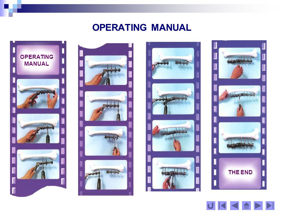 OPERATING MANUAL Depending on the volume, size and strength of the broken bones, we propose a method for choosing the appropriate screws based on the following principle: not more than one third of the local bone thickness: BoneScrew diameter [mm] Phalanges of the hands and feet /metacarpal, 2 or 3 metatarsal, heel bones/ Radius and ulna3 or 4 Distal epiphysis of radius and proximal epiphysis of ulna 4 or 5 Distal epiphysis of humerus 4 Diaphyasis and proximal metadiaphyasis of humerus4; 5 or 6 Femur5 or 6 Pelvic bones5 or 6 CHOOSING THE NECESSARY SCREWS