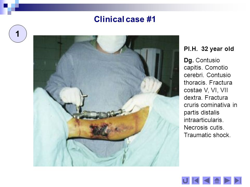 Clinical case #1 2 Resuscitation for dominating the traumatic shock.
