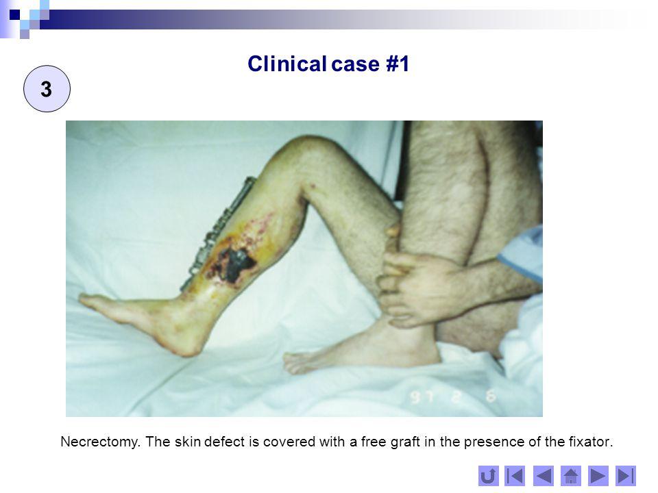 Clinical case #1 4 Early rehabilitation