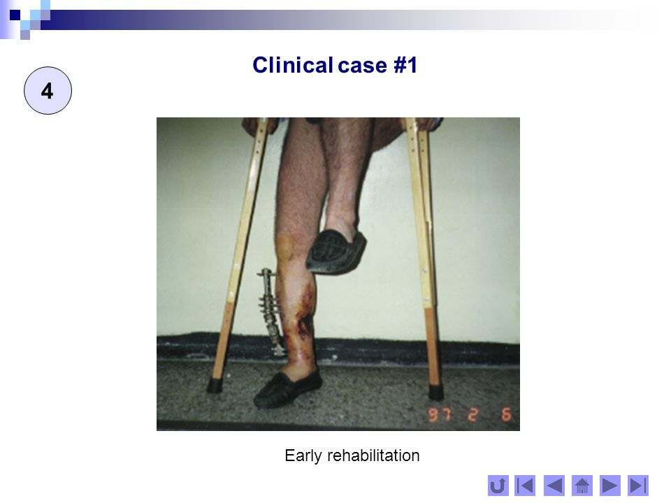 Clinical case #2 1 43 -year -old man with pseudoartrosa tibiae & infecta fistulosa until 1988 and fistula for 9 years.