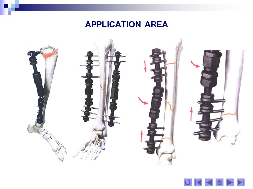 CONTENT The system for external fixation Nestorov includes: set of different /in construction/ metal items (fixators), which could be joined to each other and form an external frame with multiple functions and different strength, in dependence of the place and purpose.