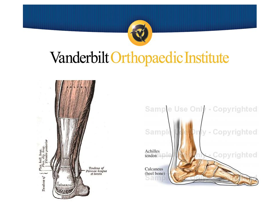 Injuries of the Achilles Tendon