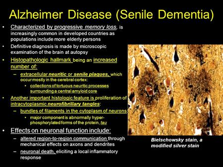 Alzheimer Disease (Senile Dementia) Characterized by progressive memory loss, is increasingly common in developed countries as populations include more.