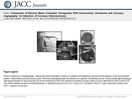 Date of download: 9/17/2016 Copyright © The American College of Cardiology. All rights reserved. From: Comparison of Electron Beam Computed Tomography.