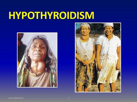 HYPOTHYROIDISM  1. objectives What causes hypothyroidism What are the clinical signs? How is it diagnosed? Can it be treated?