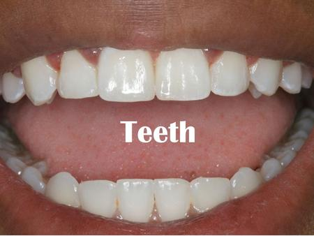 Teeth. …Focus Questions… 1. What are the main structures and functions of the teeth? 2. What is Periodontitis?