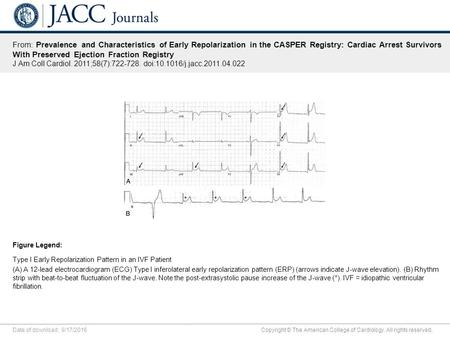 Date of download: 9/17/2016 Copyright © The American College of Cardiology. All rights reserved. From: Prevalence and Characteristics of Early Repolarization.