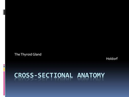 The Thyroid Gland Holdorf.  Normal Anatomy  The right and left lobes of the thyroid gland are situated in the lower part of the neck along either.