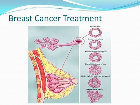 "Breast Cancer Treatment. Treatment 2 aspects 1. Treatment of the breast itself: ""Local Treatment"" 2. Treatment of the whole body = ""Systemic treatment"""