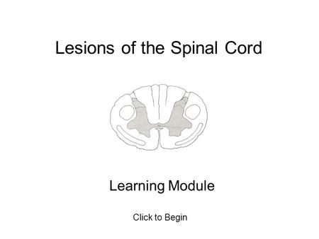 Lesions of the Spinal Cord Learning Module Click to Begin.