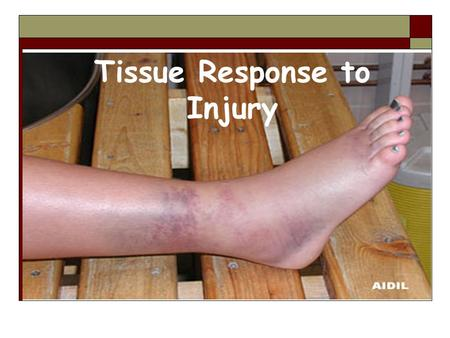Tissue Response to Injury The Healing Process  Essential for ATCs & HCPs to understand the healing process Able to recognize each, sequence & time frame.