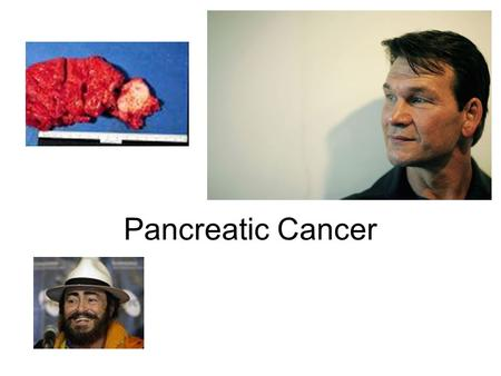 Pancreatic Cancer. Incidence and Epidemiology 25,000-30,000 diagnosed annually in the US or fifth leading cause of cancer-related death Prevalent in men.