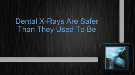 Dental X-Rays Are Safer Than They Used To Be. One of the most important tools family dentists use is the dental x-ray.