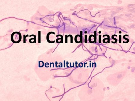 Oral Candidiasis Dentaltutor.in. Introduction In human beings, Candida species are present as normal flora of the skin and mucocutaneous areas, intestines.