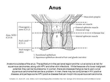 Anus carcinoma cell squamous