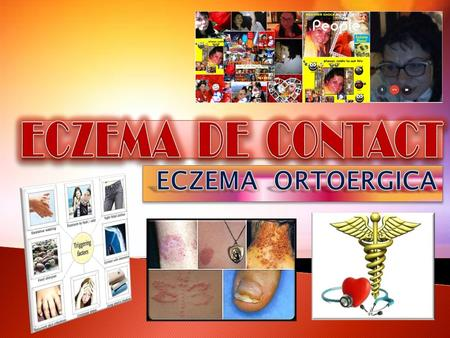 Vesicular and crusted contact eczema of the face (cosmetic allergy). Acute vesicular contact eczema of the hand.