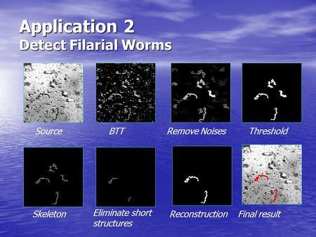 Application 2 Detect Filarial Worms SourceBTTRemove NoisesThreshold Skeleton Eliminate short structures ReconstructionFinal result.