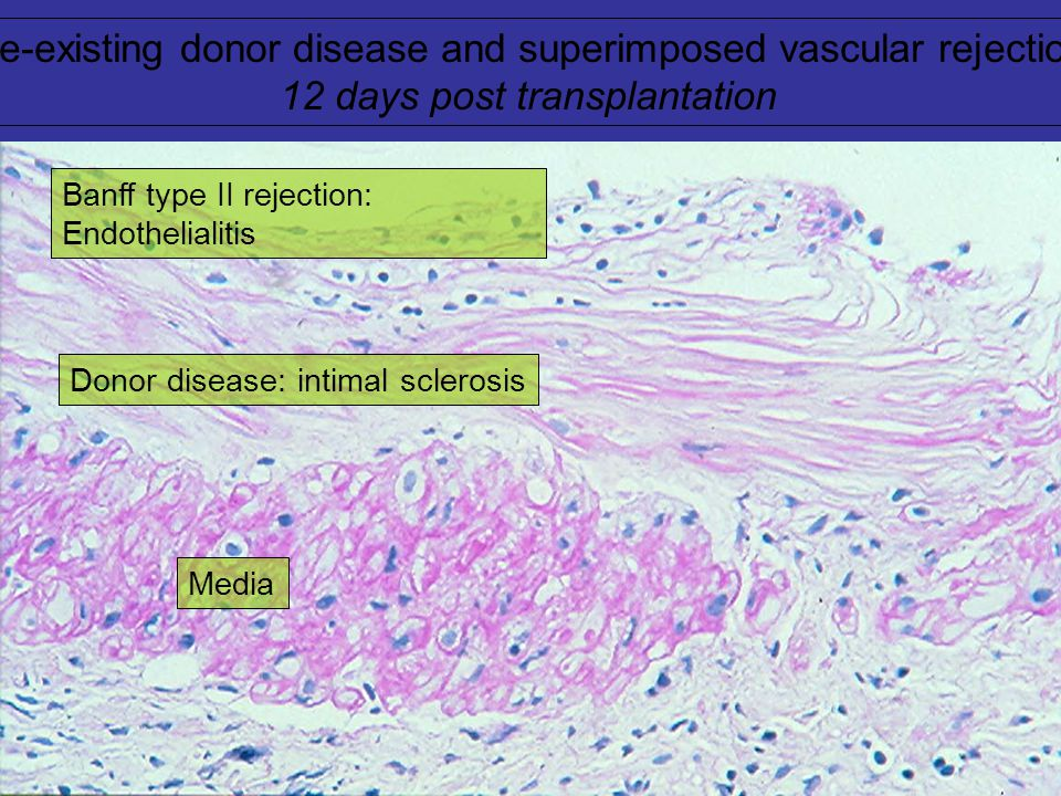 Pre-existing donor disease and superimposed rejection 5 months post transplantation: Arterial intimal sclerosis and chronic active vascular rejection
