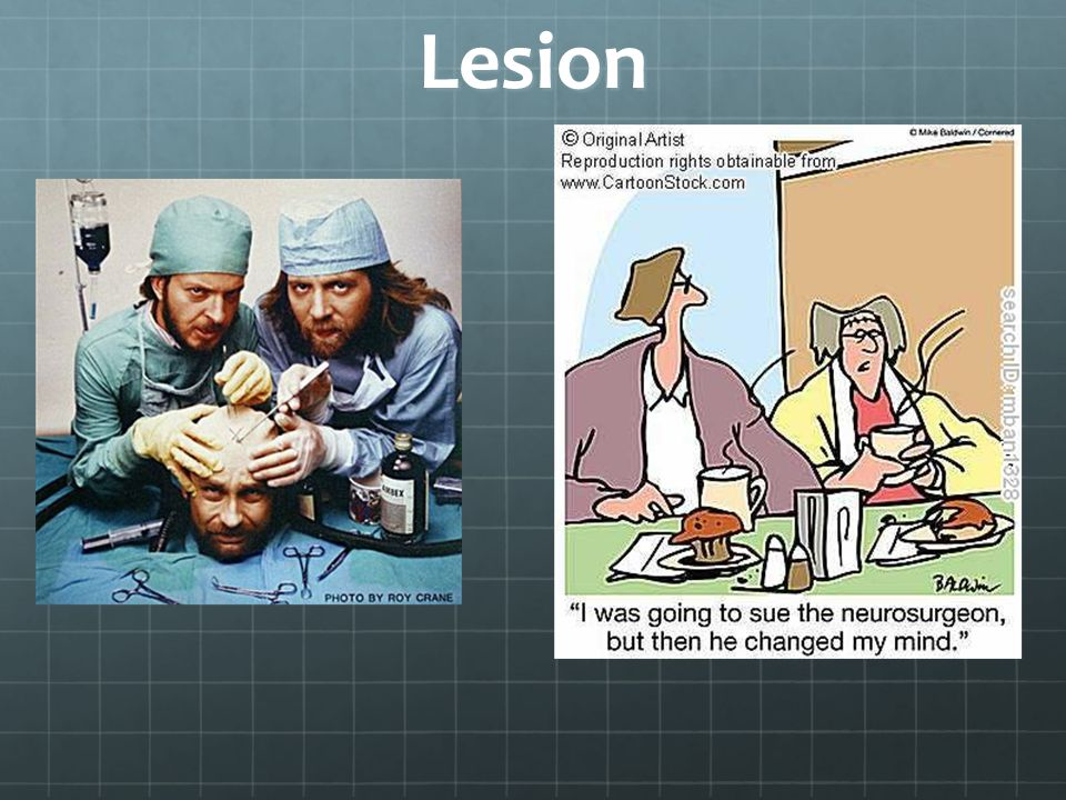 Electrical Stimulation (Open-brain surgery)
