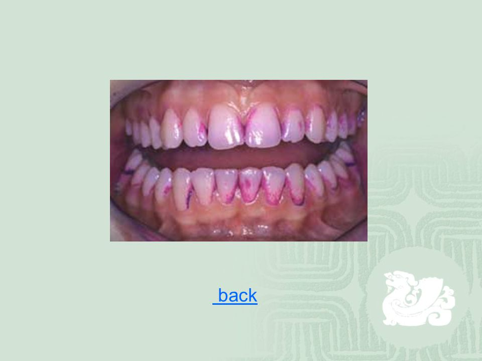 Dental Caries  the destruction of the enamel (釉质), dentin (牙质) or cementum (牙骨质) of teeth due to bacterial activities  Streptococcus mutans, Lactobacilli , Actinomyces (放线菌), and various proteolytic bacteria