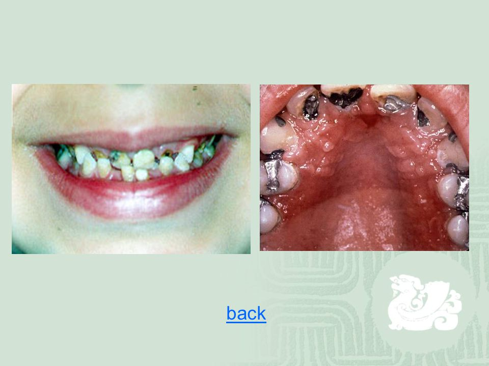 Periodontal Disease  bacterial infections that affect the supporting structures of the teeth (gingiva, cementum ( 牙骨质), periodontal membrane and alveolar bone)  Actinomyces, streptococci, spirochetes and Bacteroides