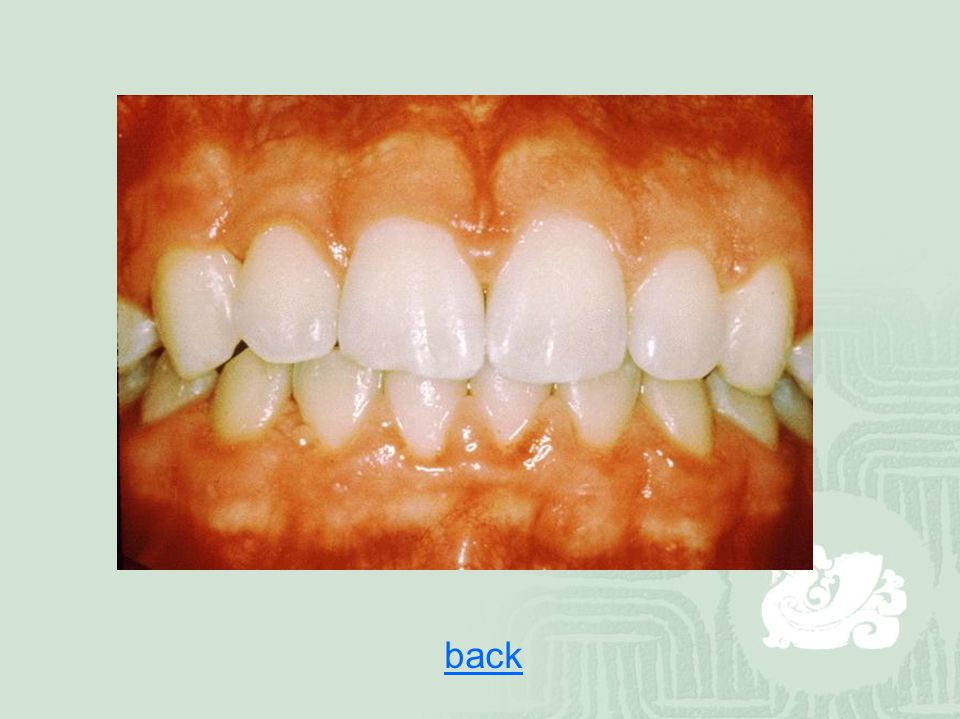 How to prevent dental diseases  Brush your teeth two times everyday, after arousing and before sleeping  Use toothpastes which contains fluoride  Use dental floss to clean your teeth-gaps everyday