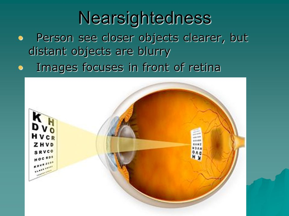 Farsightedness Person sees distant objects clearly, but close objects are blurry Person sees distant objects clearly, but close objects are blurry Image focuses beyond retina Image focuses beyond retina