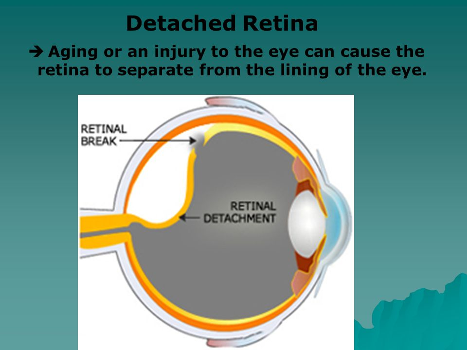  This condition occurs when cells in the center of the retina break down. Macular Degeneration