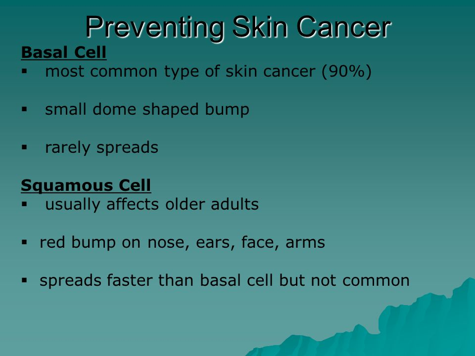 Melanoma  least common form of skin cancer  most deadly form of cancer  usually form from moles Preventing Skin Cancer How to avoid skin cancer 1.