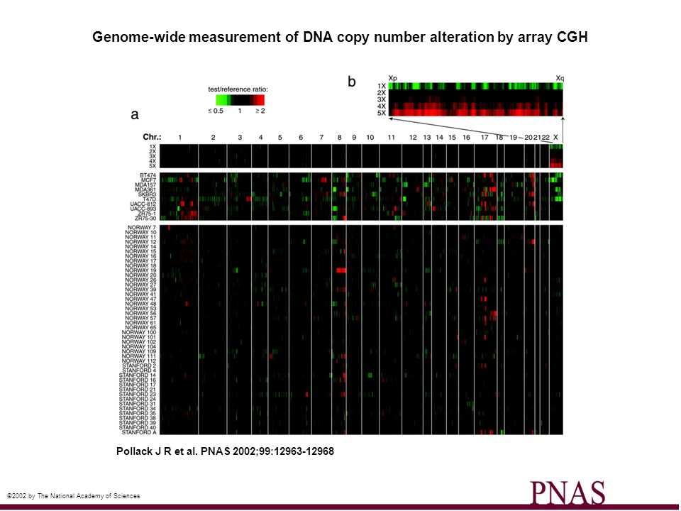 DNA copy number alteration across chromosome 8 by array CGH Pollack J R et al.