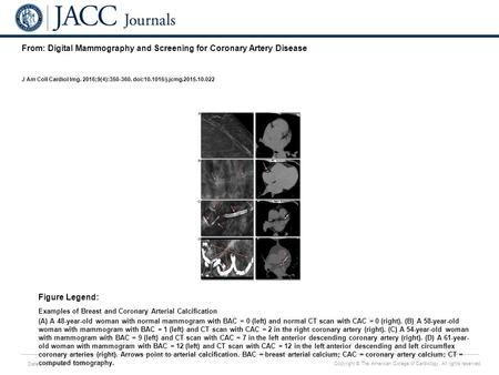 Date of download: 7/5/2016 Copyright © The American College of Cardiology. All rights reserved. From: Digital Mammography and Screening for Coronary Artery.