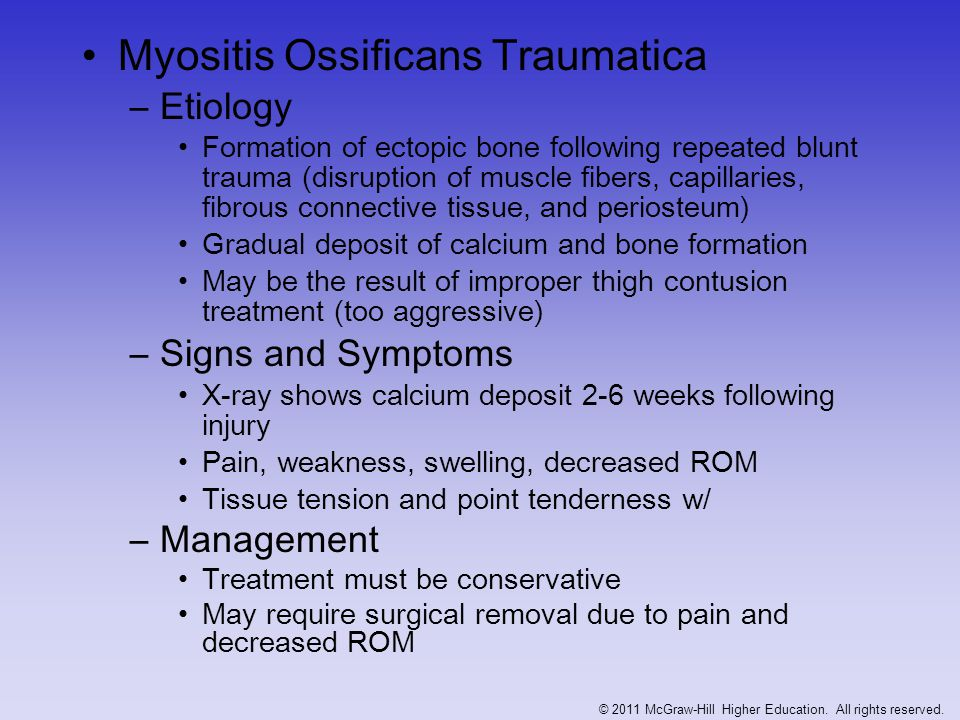 Figure 21-5 Myositis Ossificans Traumatica –Management Treatment must be conservative May require surgical removal due to pain and decreased ROM