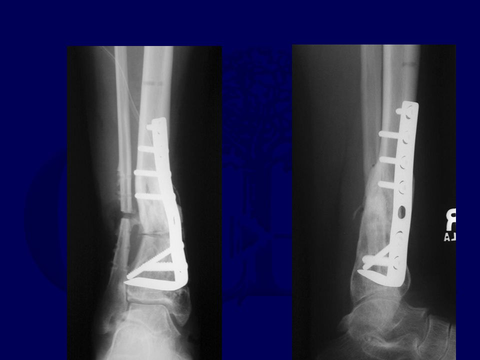Oblique osteotomy Single site to heal Large surface to heal Compression at site Can lengthen No graft Creates some rotation