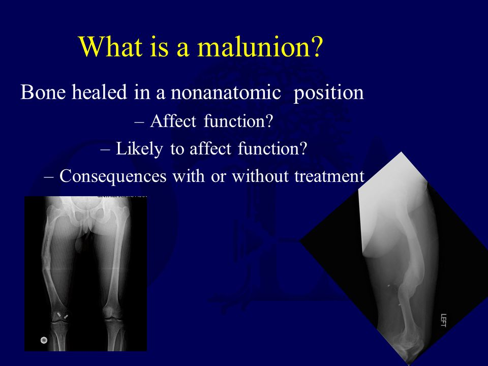 What is a malunion.