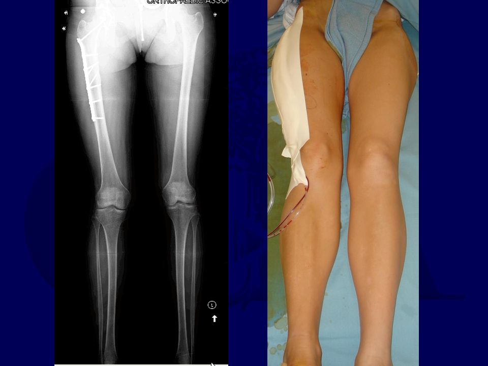 54 M, 13 years s/p Open tibial Fx & Osteomyelitis Now, complaining of knee and tibial pain with activities