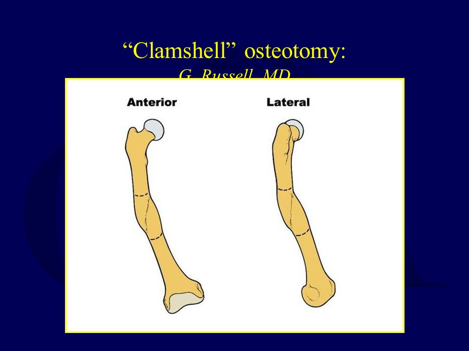 Clamshell Osteotomy: G. Russell, MD