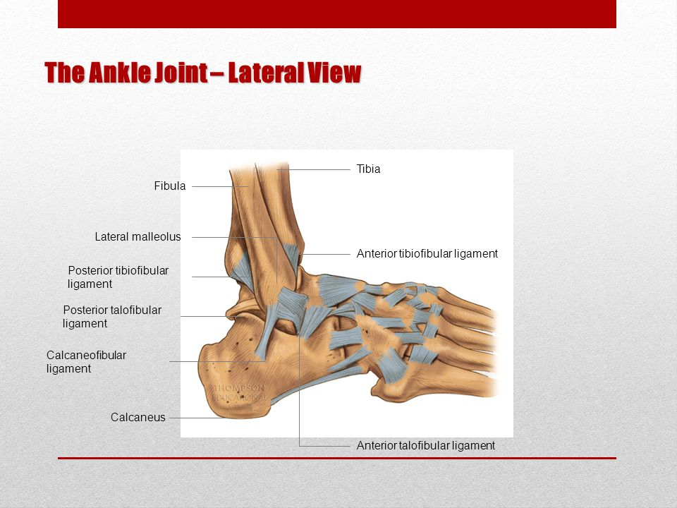 Ankle Sprain 1 st Degree – inversion stress with foot in mild plantar flexion, stretching the anterior talofibular ligament 2 nd Degree – tear anterior talofibular ligament, stretch and tear the calcaneofibular ligament 3 rd Degree – grade III injury, varying degrees of injury to anterior talofibular, calcaneofibular, and posterior talofibular ligaments and joint capsule