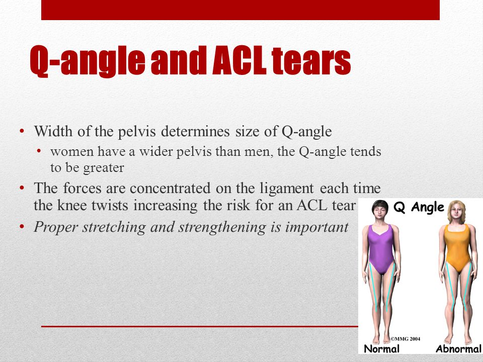 Symptoms and Signs Experience a pop Immediate disability Knee feels like it is coming apart Rapid swelling at joint line Positive anterior drawer sign pivot-shift test, jerk test, and flexion-rotation drawer test may be positive Decreased proprioception