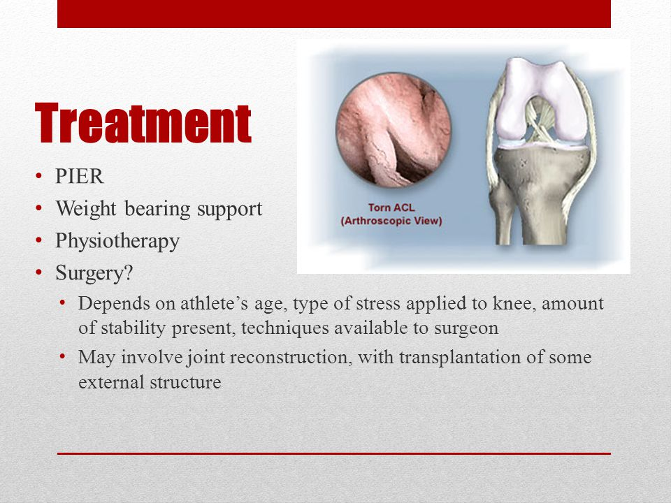 Achilles Tendon Rupture Sports with stop and go action Usually a result of sudden pushing-off action of the forefoot with the knee being forced into complete extension