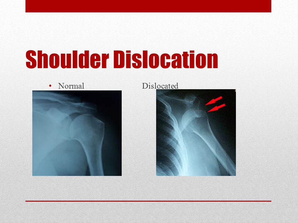 Dislocation Bone displaced from position Damage to joint (synovial) capsule and ligaments between bones, muscles and tendons could tear Signs: deformed joints, painful to move or touch, joint is unusable