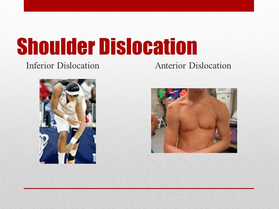Separation Bones held by ligaments tear or separate from each other Shoulder separation Tearing of acromioclavicular ligament union of clavicle to acromion) Result from falls directly on shoulder (contact from another player or tumble on shoulder)