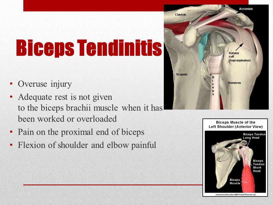 Tendinitis Inflammation of a tendon caused by irritation due to prolonged or abnormal use itis means an inflammation to that particular organ or tissue