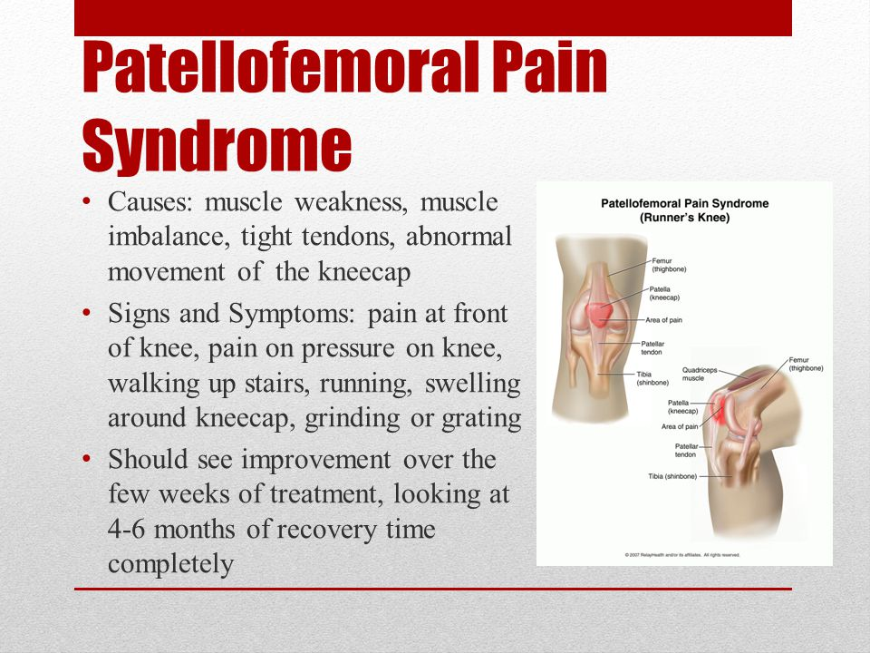 Patellofemoral Pain Syndrome Treatment & Rehabilitation: Rest the joint or cut back on the intensity of activity (ex- reduce practice or training schedule) Strengthen the Quadriceps muscles (they support the knee) Wear a knee brace or sleeve during activity Wear an arch support or orthotic to prevent overpronation Replace old shoes, which have been worn down from pronation Anti-inflammatory drugs can be taken to reduce pain Rehabilitation can last anywhere from one to eight weeks depending on the severity of the injury.
