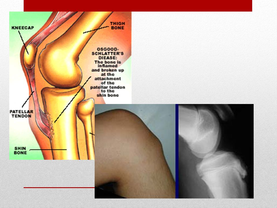 Osgood Schlatter Disease Causes: Growth spurt: this condition tends to affect teenage children directly after a growth spurt.