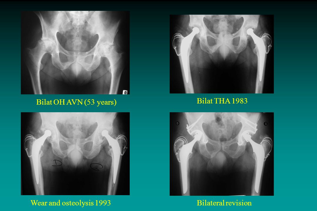 Results  Clinical results: - 10.8 ± 2.5 pre-op to 17.4 ± 0.6 last FU p < 0.001 (Wilcoxon) - age, underlying disease: NS - 94.6% rated excellent to good  Radiographic results  Mean wear: 0.06 ± 0.08 mm/year unrevised hips 0.33 ± 0.06 mm/year revised hips Acetabular Side63102 No RL Incplete RL Cplete RL Femoral Side6951 p = 0.008 Mann-Whitney