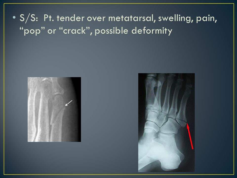 Tx: Ice, Compression wrap, crutches, send to Dr.for x-ray.