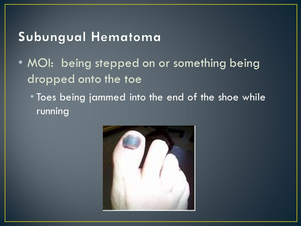 S/S: Bleeding into the nail bed (under nail) Throbbing pain Pressure against nail exacerbates the problem